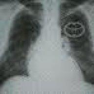 2010-2012 Prius Sticking Exhaust Gas Recirculation (EGR) Valve